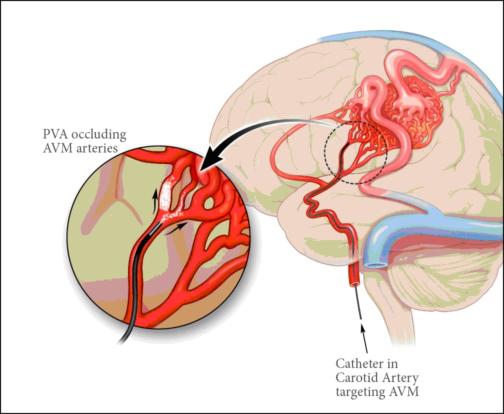 Chủ đề: Phòng ngừa tai biến mạch máu não do tăng huyết áp