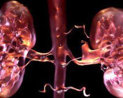 Bác sĩ khuyến cáo: 4 dấu hiệu cần đi khám ngay kẻo suy thận