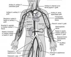 Mức lọc cầu thận trong sàng lọc, chẩn đoán và phân loại bệnh thận mạn
