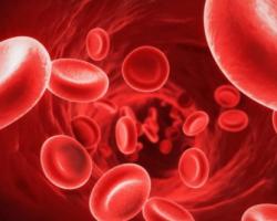 Điều trị biến chứng thiếu máu trong bệnh thận mạn
